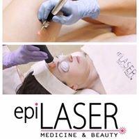 Epi Laser