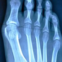 Tower Foot & Ankle Surgery